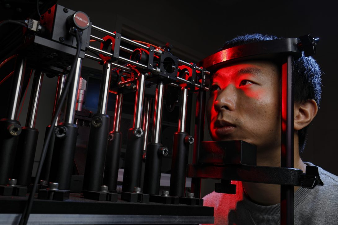 Yao lab eye imaging